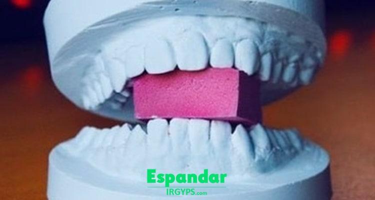 گچ دندانپزشکی